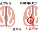 鼻中隔矯正と粘膜下下鼻甲介骨切除、アレルギー性鼻炎の手術