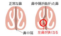 鼻中隔弯曲症,肥厚性鼻炎,アレルギー性鼻炎